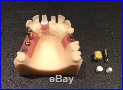 Nobel Biocare Replace Single and Partial Dental Implant Model with Parts